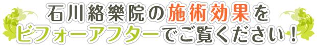 まずは石川絡樂院の施術効果をお確かめください